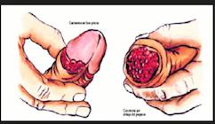 CANCER DE PENE. GRAFICO