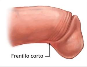 FRENILLO CORTO. GRAFICO