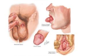 sifilis, grafico